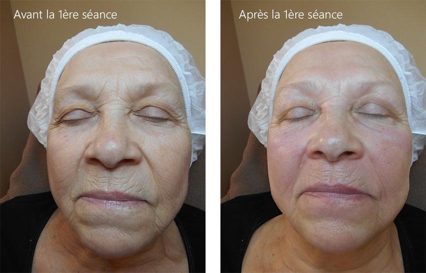 Préférence Soins du visage anti-âge et anti-imperfection, traitement d'acné  RT38